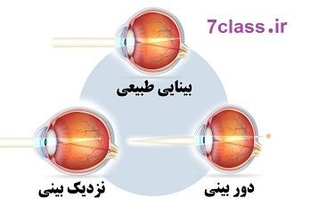 ساختمان چشم علوم پنجم